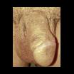 seks-s-ostrokonechnimi-kondilomami