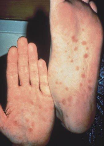 Сифилис фотографии у мужчин и женщин. Сифилис в наше время протекает преимущественно без каких либо симптомов.